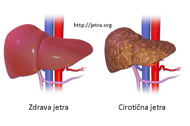 Oštečena jetra