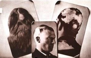 Kako se liječi alopecija